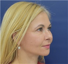 Facelift After Photo by Richard Reish, MD, FACS; New York, NY - Case 35379