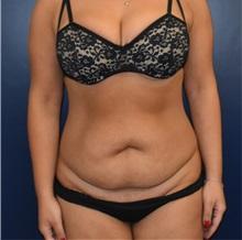 Tummy Tuck Before Photo by Richard Reish, MD, FACS; New York, NY - Case 35380