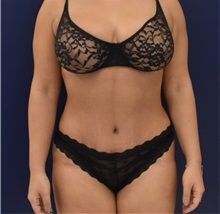 Liposuction After Photo by Richard Reish, MD, FACS; New York, NY - Case 35381
