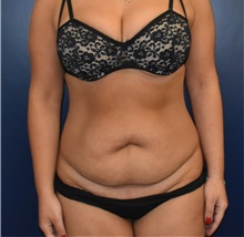 Liposuction Before Photo by Richard Reish, MD, FACS; New York, NY - Case 35381