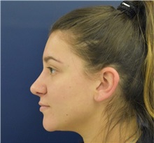 Rhinoplasty After Photo by Richard Reish, MD, FACS; New York, NY - Case 35395