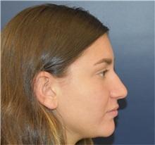 Rhinoplasty Before Photo by Richard Reish, MD, FACS; New York, NY - Case 35395
