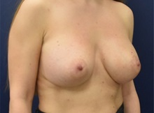 Breast Augmentation After Photo by Richard Reish, MD, FACS; New York, NY - Case 35398