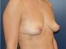 Breast Augmentation Before Photo by Richard Reish, MD, FACS; New York, NY - Case 35398
