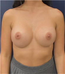 Breast Augmentation After Photo by Richard Reish, MD, FACS; New York, NY - Case 35420
