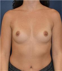 Breast Augmentation Before Photo by Richard Reish, MD, FACS; New York, NY - Case 35420