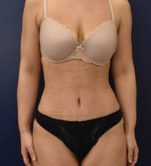 Tummy Tuck After Photo by Richard Reish, MD, FACS; New York, NY - Case 36235