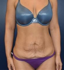 Tummy Tuck Before Photo by Richard Reish, MD, FACS; New York, NY - Case 36235