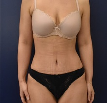 Liposuction After Photo by Richard Reish, MD, FACS; New York, NY - Case 36236