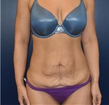 Liposuction Before Photo by Richard Reish, MD, FACS; New York, NY - Case 36236