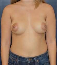 Breast Augmentation Before Photo by Richard Reish, MD, FACS; New York, NY - Case 36255