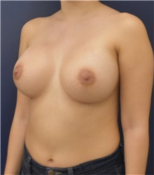 Breast Augmentation After Photo by Richard Reish, MD, FACS; New York, NY - Case 36255