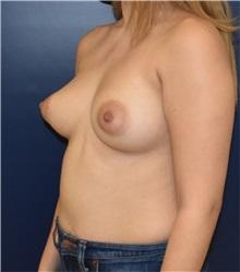 Breast Lift Before Photo by Richard Reish, MD, FACS; New York, NY - Case 36256