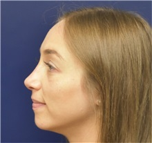 Rhinoplasty After Photo by Richard Reish, MD, FACS; New York, NY - Case 36260