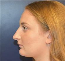 Rhinoplasty Before Photo by Richard Reish, MD, FACS; New York, NY - Case 36266