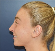 Rhinoplasty After Photo by Richard Reish, MD, FACS; New York, NY - Case 36268