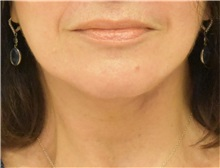 Neck Lift After Photo by Richard Reish, MD, FACS; New York, NY - Case 38258