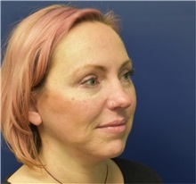 Facelift After Photo by Richard Reish, MD, FACS; New York, NY - Case 38324
