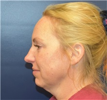 Neck Lift Before Photo by Richard Reish, MD, FACS; New York, NY - Case 38326