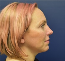 Neck Lift After Photo by Richard Reish, MD, FACS; New York, NY - Case 38326