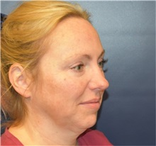 Chin Augmentation Before Photo by Richard Reish, MD, FACS; New York, NY - Case 38327