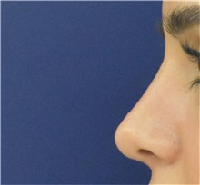 Rhinoplasty After Photo by Richard Reish, MD, FACS; New York, NY - Case 38329