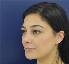 Rhinoplasty After Photo by Richard Reish, MD, FACS; New York, NY - Case 38345