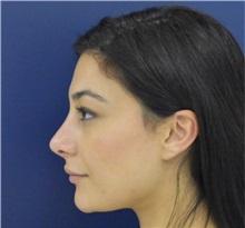Rhinoplasty After Photo by Richard Reish, MD, FACS; New York, NY - Case 38345