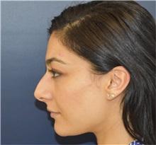 Rhinoplasty Before Photo by Richard Reish, MD, FACS; New York, NY - Case 38345