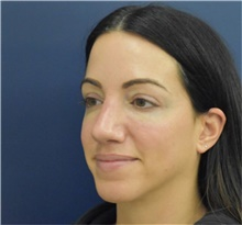 Rhinoplasty After Photo by Richard Reish, MD, FACS; New York, NY - Case 40739