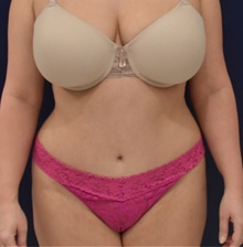 Tummy Tuck After Photo by Richard Reish, MD, FACS; New York, NY - Case 40741