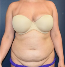 Tummy Tuck Before Photo by Richard Reish, MD, FACS; New York, NY - Case 40741