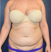 Liposuction Before Photo by Richard Reish, MD, FACS; New York, NY - Case 40742