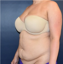 Liposuction Before Photo by Richard Reish, MD, FACS; New York, NY - Case 40742