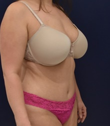Liposuction After Photo by Richard Reish, MD, FACS; New York, NY - Case 40742