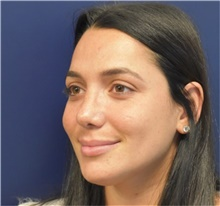 Rhinoplasty After Photo by Richard Reish, MD, FACS; New York, NY - Case 40743