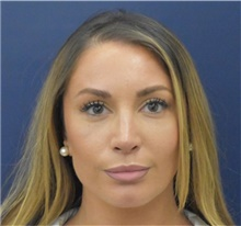 Rhinoplasty After Photo by Richard Reish, MD, FACS; New York, NY - Case 40795