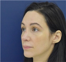 Rhinoplasty After Photo by Richard Reish, MD, FACS; New York, NY - Case 40796