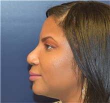 Rhinoplasty Before Photo by Richard Reish, MD, FACS; New York, NY - Case 40798