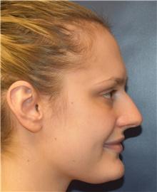 Rhinoplasty Before Photo by Richard Reish, MD, FACS; New York, NY - Case 43491
