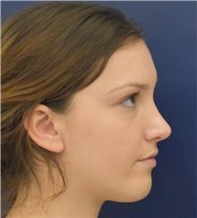 Rhinoplasty After Photo by Richard Reish, MD, FACS; New York, NY - Case 43496