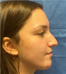 Rhinoplasty Before Photo by Richard Reish, MD, FACS; New York, NY - Case 43496