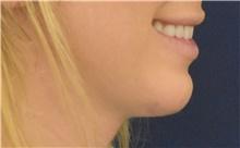 Chin Augmentation After Photo by Richard Reish, MD, FACS; New York, NY - Case 43501