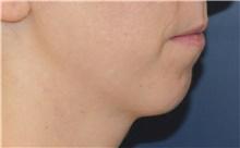 Chin Augmentation Before Photo by Richard Reish, MD, FACS; New York, NY - Case 43501
