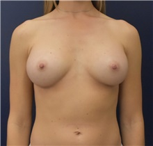 Breast Augmentation After Photo by Richard Reish, MD, FACS; New York, NY - Case 43552