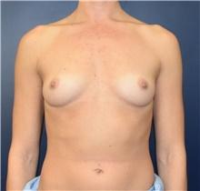 Breast Augmentation Before Photo by Richard Reish, MD, FACS; New York, NY - Case 43552