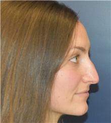 Rhinoplasty Before Photo by Richard Reish, MD, FACS; New York, NY - Case 43564