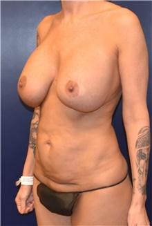 Tummy Tuck Before Photo by Richard Reish, MD, FACS; New York, NY - Case 43580