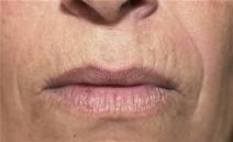Dermal Fillers After Photo by Richard Sadove, MD; Gainesville, FL - Case 21973