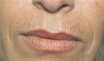 Dermal Fillers Before Photo by Richard Sadove, MD; Gainesville, FL - Case 21973